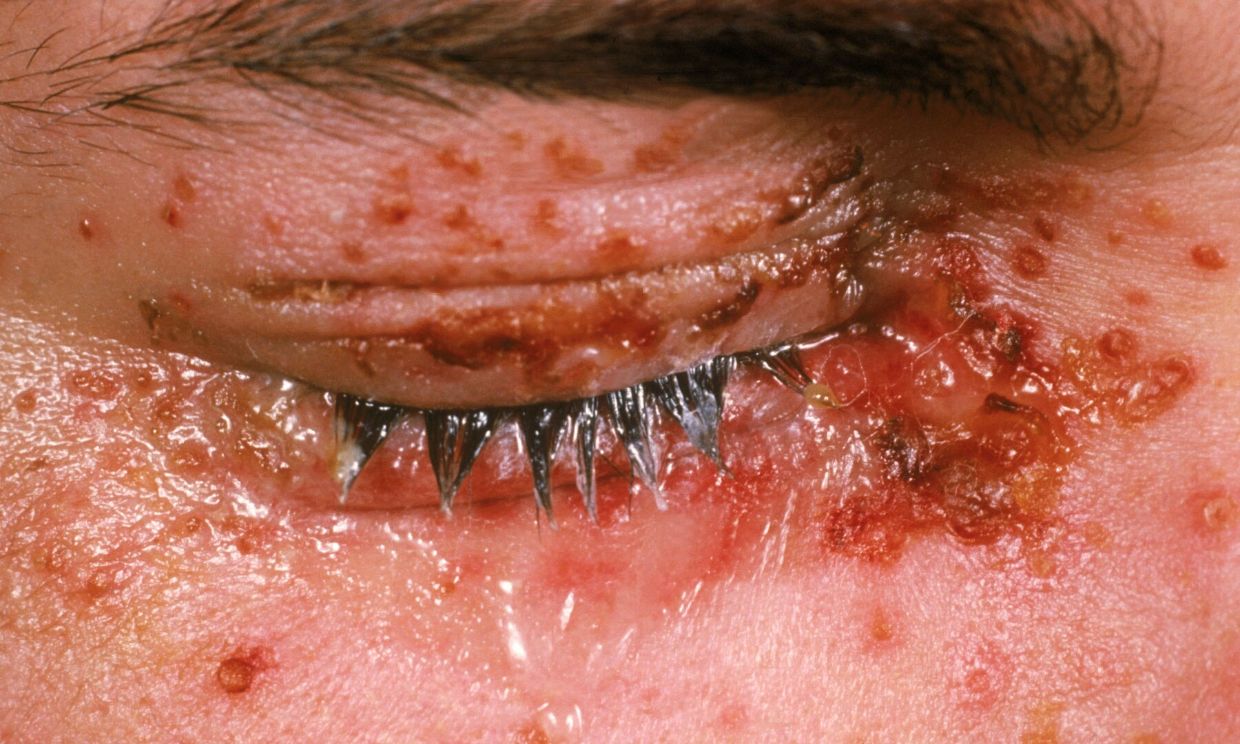 herpes symptom pictures #10